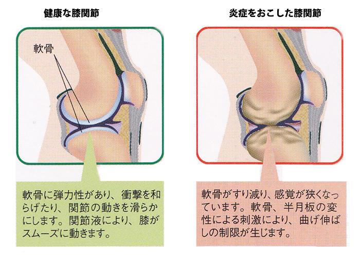 健康な関節は軟骨に弾力性があります。軟骨がすり減ると炎症に。